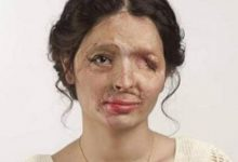 Photo of Acid Attack: A global problem of many girls.